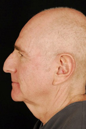 Before Photo - Facelift - Case #3703 - Lateral View