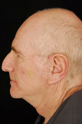 After Photo - Facelift - Case #3703 - Lateral View