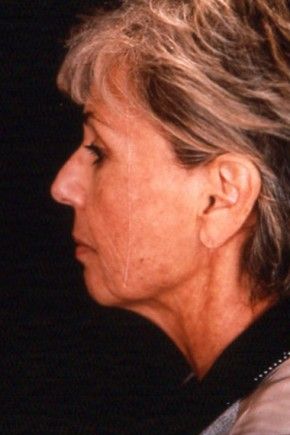 Before Photo - Facelift - Case #3705 - Lateral View