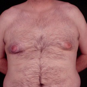 Before Photo - Gynecomastia - Case #3706 - Frontal View