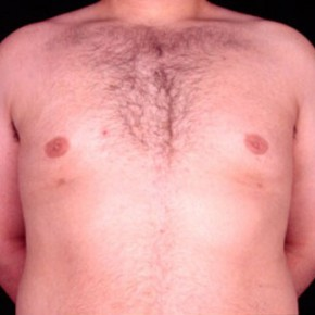 After Photo - Gynecomastia - Case #3707 - Frontal View