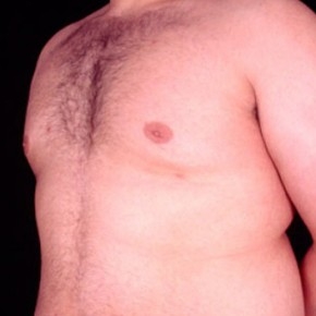 After Photo - Gynecomastia - Case #3707 - Oblique View