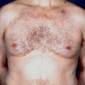 Before Photo - Gynecomastia - Case #3708 - Frontal View