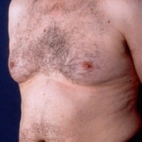Before Photo - Gynecomastia - Case #3708 - Oblique View