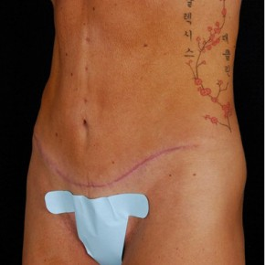 After Photo - Tummy Tuck - Case #3719 - Oblique View
