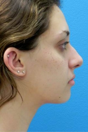 After Photo - Liposuction - Case #3721 - Lateral View
