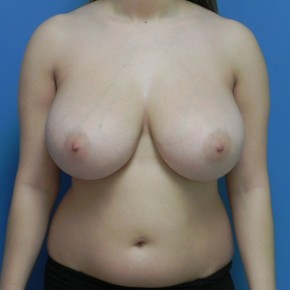 Before Photo - Breast Reduction - Case #3722 - Frontal View