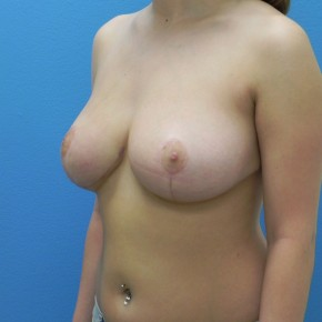 After Photo - Breast Reduction - Case #3722 - Oblique View