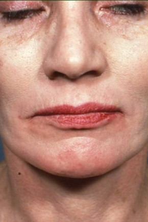 After Photo - Chemical Peel - Case #3723 - Chemical Peel / Facelift - Frontal View