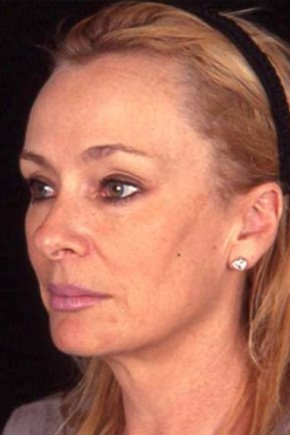 Before Photo - Facial Rejuvenation - Case #3725 - Endoscopic Facelift - Oblique View