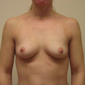 Before Photo - Breast Augmentation - Case #3739 - Frontal View