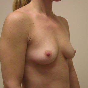 Before Photo - Breast Augmentation - Case #3739 - Oblique View