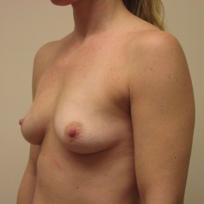 Before Photo - Breast Augmentation - Case #3739 - Lateral View
