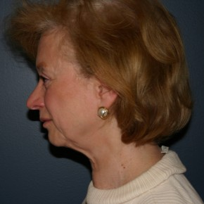 Before Photo - Facelift - Case #3740 - Oblique View