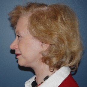 After Photo - Facelift - Case #3740 - Oblique View