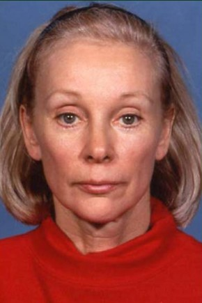 After Photo - Brow Lift - Case #3741 - Endoscopic Forehead Lift - Frontal View