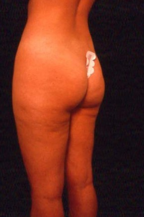 Before Photo - Liposuction - Case #3742 - Frontal View