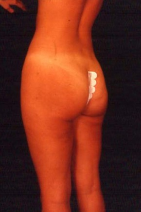 After Photo - Liposuction - Case #3742 - Frontal View
