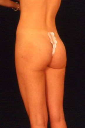 After Photo - Liposuction - Case #3743 - Frontal View