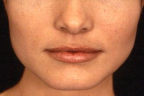 Before Photo - Lip Enhancement - Case #3747 - Lip Augmentation - Frontal View