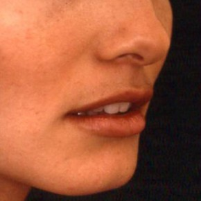 Before Photo - Lip Enhancement - Case #3747 - Lip Augmentation - Oblique View