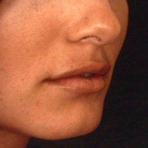 After Photo - Lip Enhancement - Case #3747 - Lip Augmentation - Oblique View