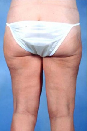 After Photo - Liposuction - Case #3750 - Frontal View