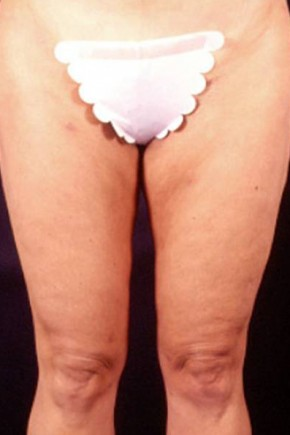 After Photo - Liposuction - Case #3752 - Frontal View