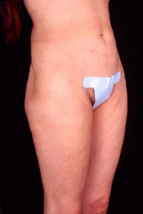 Before Photo - Liposuction - Case #3753 - Oblique View