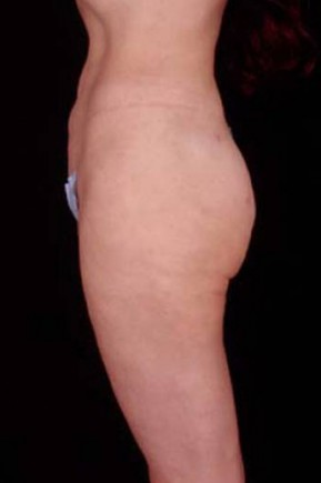 After Photo - Liposuction - Case #3753 - Lateral View