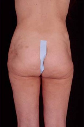 Before Photo - Liposuction - Case #3753 - Posterior View