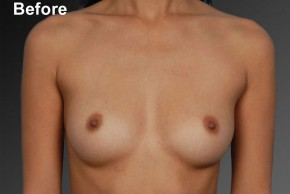 Before Photo - Breast Augmentation - Case #3776 - Frontal View