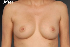 After Photo - Breast Augmentation - Case #3777 - Frontal View