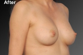 After Photo - Breast Augmentation - Case #3777 - Oblique View