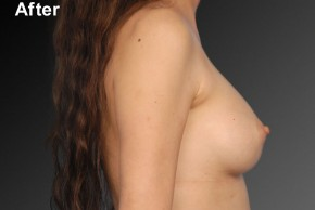 After Photo - Breast Augmentation - Case #3777 - Lateral View