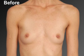 Before Photo - Breast Augmentation - Case #3783 - Frontal View