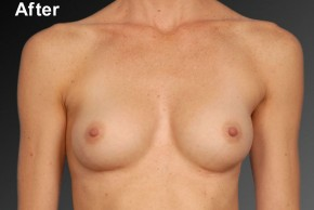 After Photo - Breast Augmentation - Case #3783 - Frontal View