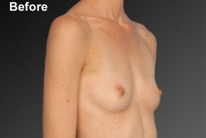 Before Photo - Breast Augmentation - Case #3783 - Oblique View