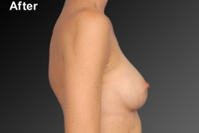 After Photo - Breast Augmentation - Case #3783 - Lateral View