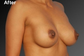 After Photo - Breast Augmentation - Case #3784 - Oblique View
