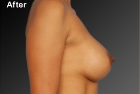 After Photo - Breast Augmentation - Case #3784 - Lateral View