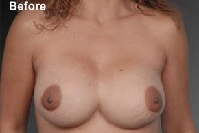 Before Photo - Breast Revision - Case #3787 - Frontal View
