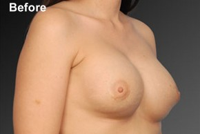 Before Photo - Breast Revision - Case #3789 - Oblique View