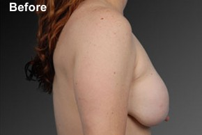 Before Photo - Breast Lift - Case #3790 - Lateral View