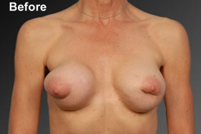 Before Photo - Breast Revision - Case #3791 - Frontal View