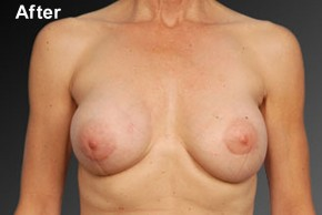 After Photo - Breast Revision - Case #3791 - Frontal View
