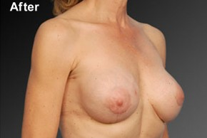 After Photo - Breast Revision - Case #3791 - Oblique View