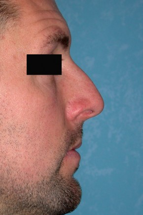 Before Photo - Nose Surgery - Case #3846 - Rhinoplasty - Frontal View