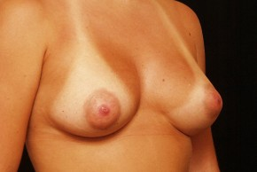 After Photo - Breast Augmentation - Case #3869 - Oblique View
