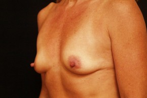 Before Photo - Breast Augmentation - Case #3870 - Oblique View